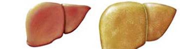 akmawa, liver case, sinhala beheth akmawa, Fatty Liver